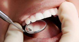 Conservativa ed Endodonzia - Dentista Foggia - Dental Solutions