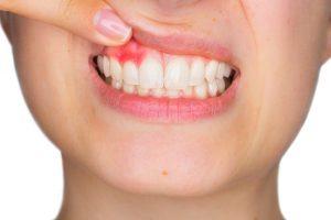 Parodontologia - Dentista Foggia - Dental Solutions